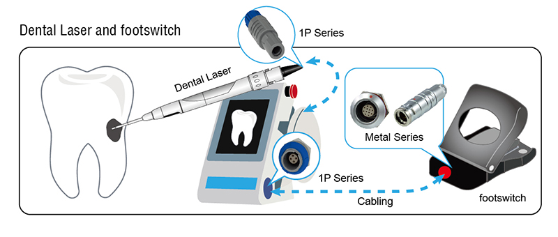 Dental Laser and footswitch for medical connector